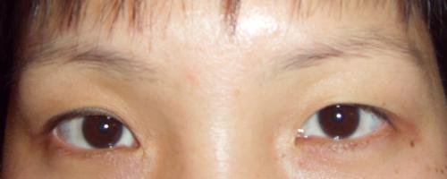 韩式无痕双眼皮