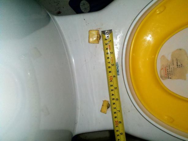 家里马桶盖的螺丝坏了