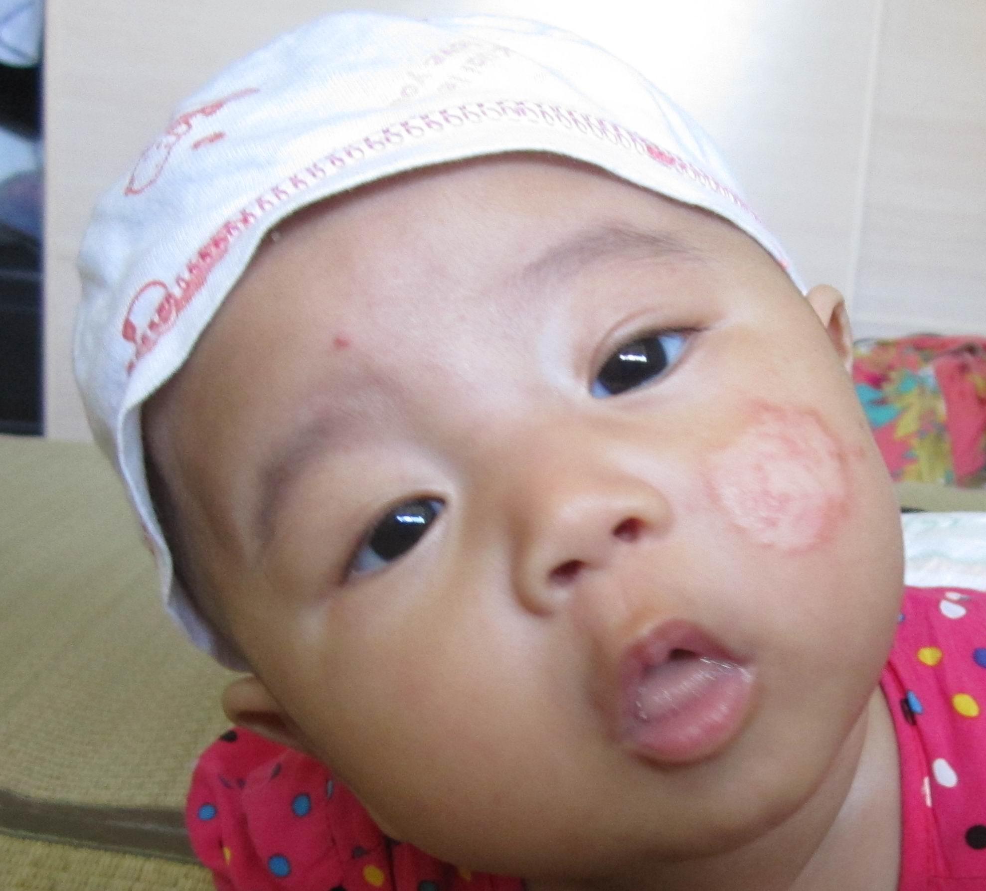 急 三个月婴儿脸上长 铜钱癣 深圳房地产信息高清图片