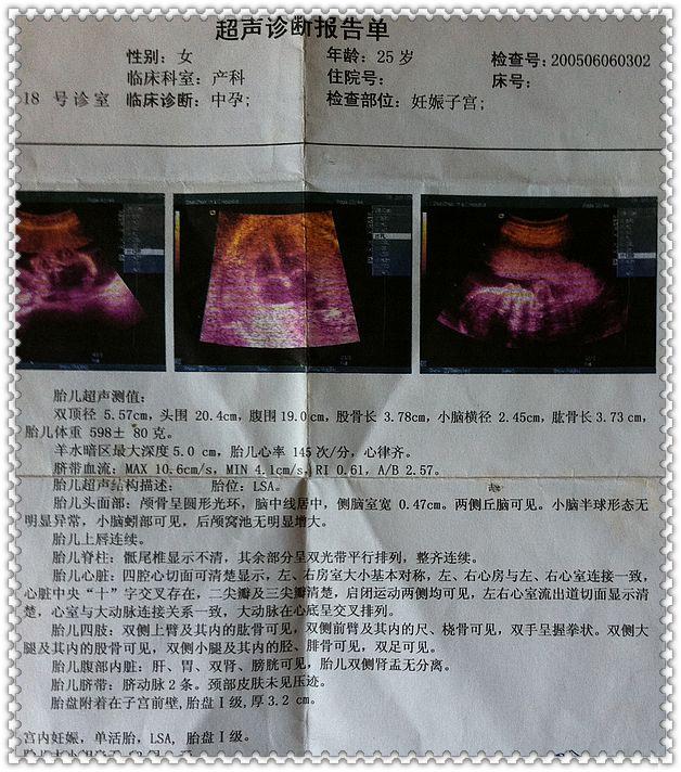老大20多周彩超图胎心